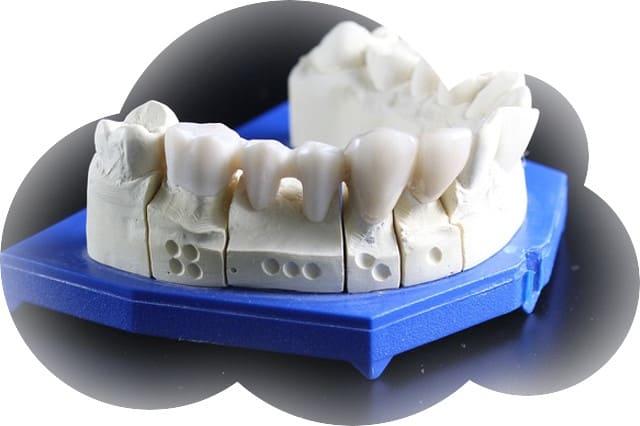 Сонник Откололся зуб 🌔 Откололся зуб во сне || Приснилось что откололся передний зуб